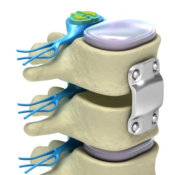 """Spinal Fixation System"""